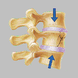 Spine and Neck Fracture